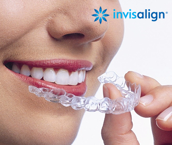 Invisalign - Start